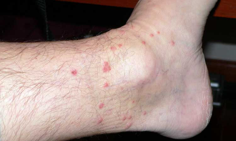 Chiggers Bites on Hands Chigger Bites on a Person's