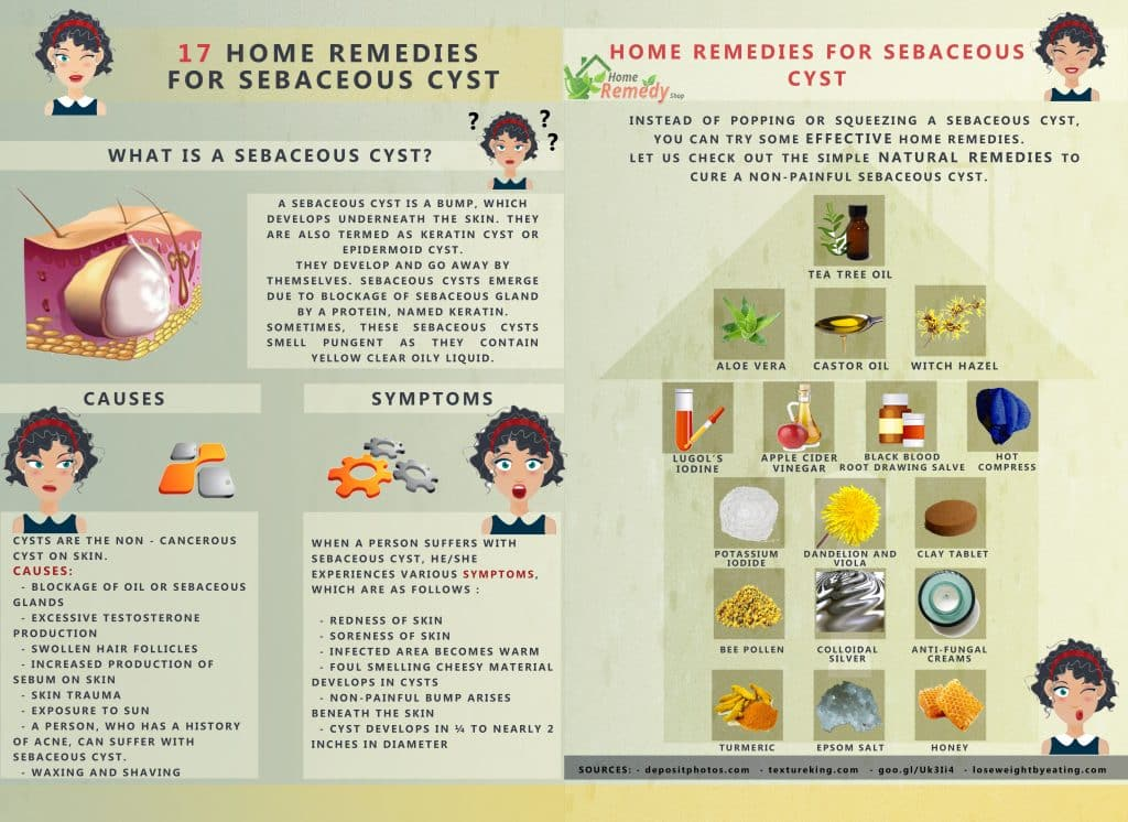 Home Remedies For Sebaceous